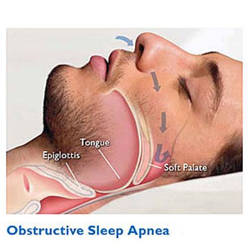 MATLAB – Uyku Sinyallerinin İşlenmesi